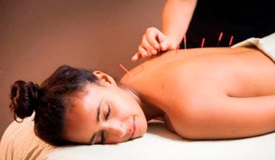 acupuntura-joacaba-sc-pato-branco-palmas-pr