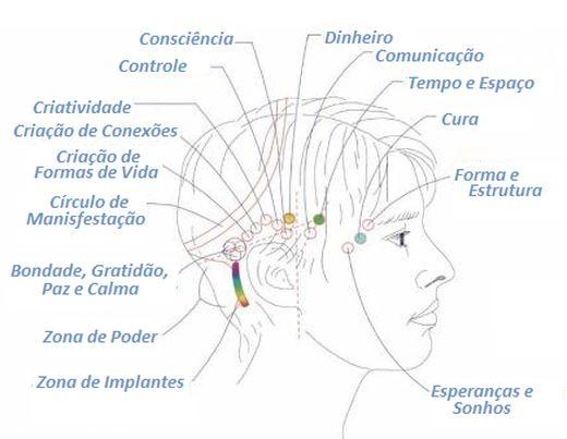 pontos-barras-de-access-terapia-florianopolis